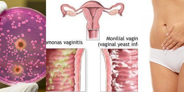 вагинална кандидоза кандида албиканс