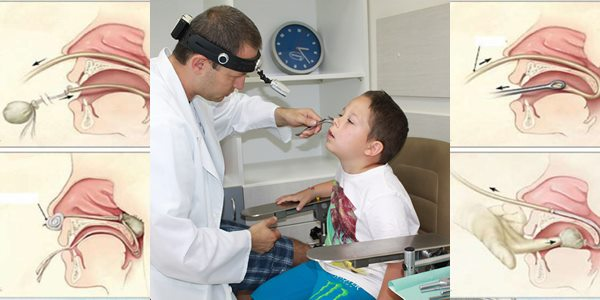 кръв от носа първа помощ лечение
