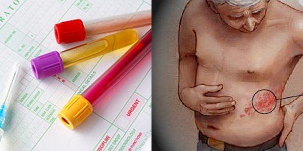 херпес зостер снимки симптоми диагноза изследвания