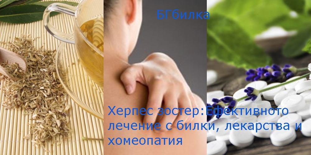 Лечение на радикулит с хомеопатия