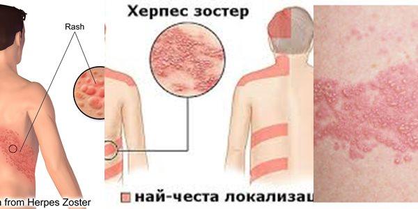 херпес зостер симптоми снимки