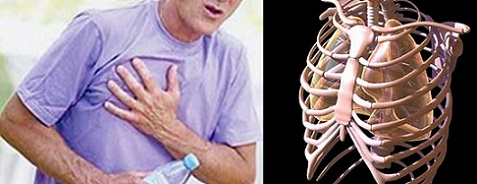 анатомия на гръден кош, болка