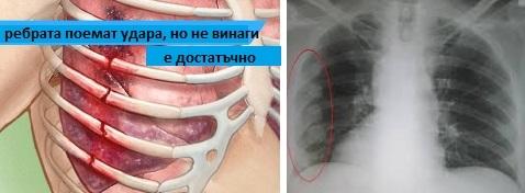 болка от травма и счупване на гръден кош