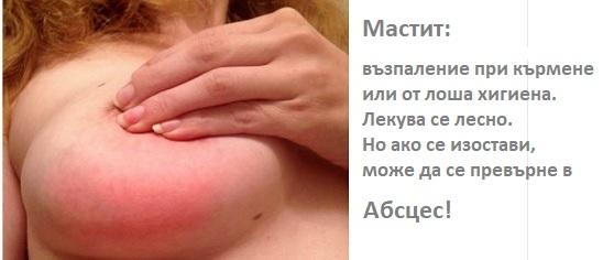 мастит, болка в гърдата
