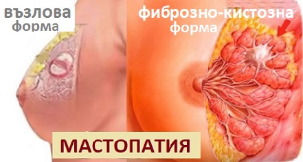 мастопатия, болка в гърдата